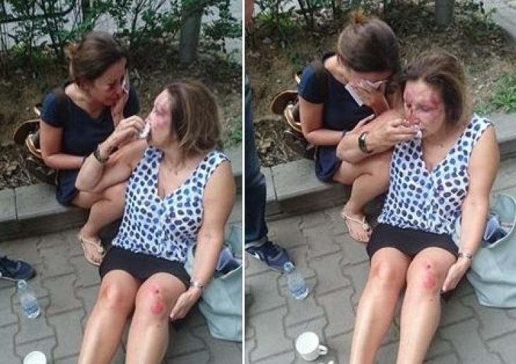"""От столичната болница """"Св. Анна"""" обявиха какво се случва със зверски пребитата нотариуска Механджийска и щерка й"""