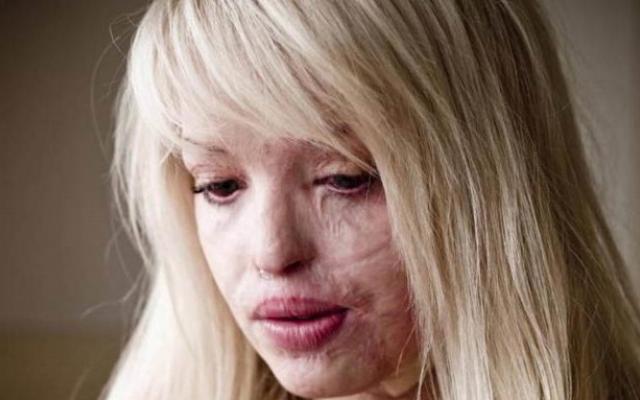 """36-годишна жена е била залята с киселина на бул. """"Ал. Стамболийски"""""""